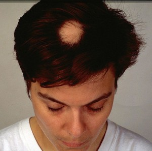 Bald patch in an otherwise health head of hair